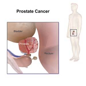 Top treatments for prostate cancer picture 5