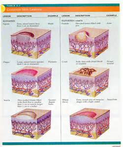 meaning of skin lesions picture 13