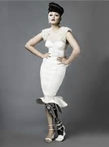 female artificial leg stories picture 1