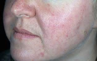 does acne cause redness of the face picture 3