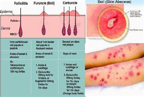 treatment for furuncle boil picture 1