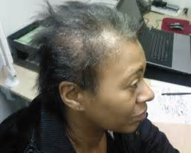 black women loosing hair picture 2