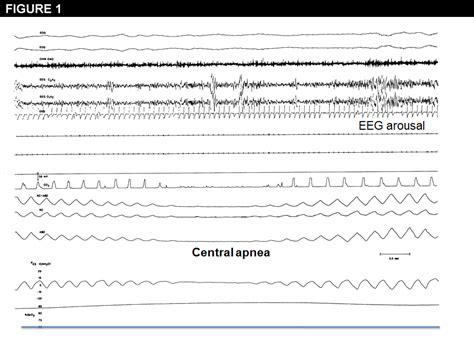 central sleep apnea reimbursement changes picture 2