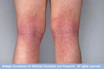 cephalexin itchy skin picture 14