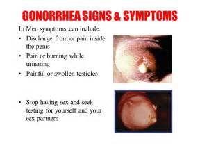 gonoriah symptoms to a women picture 9