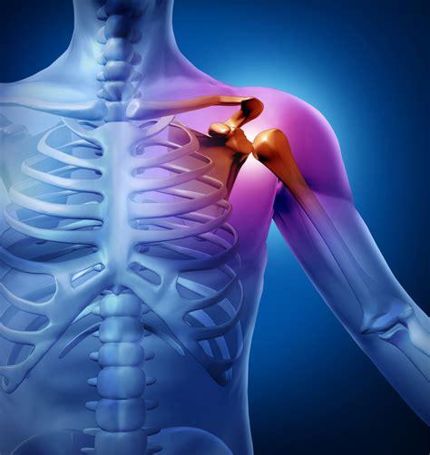 shoulder pain picture 3