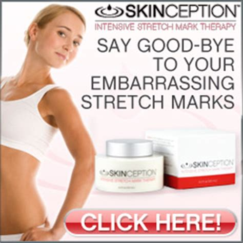 captiva sm intense stretch mark therapy with picture 10