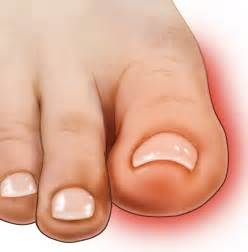 throbbing big toe joint pain picture 3
