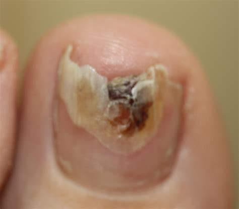 nail fungus infection picture 2