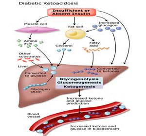 diabetic ketoacidosis picture 1