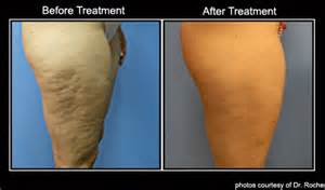 cellulite heat works picture 3