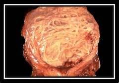 trabecula bladder picture 1