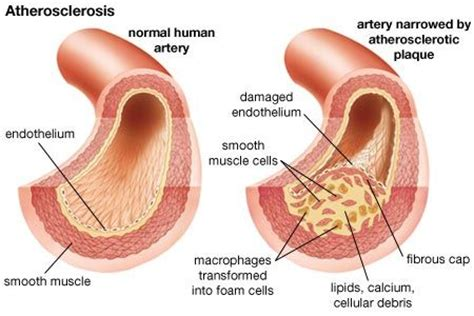 fatty deposits in penis blood flow picture 13
