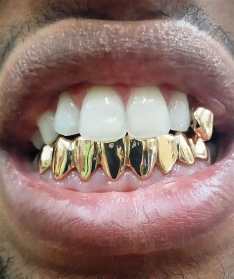 all gold and whitegold teeth picture 1