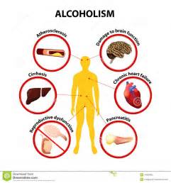 alchoholism and liver cirrhosis picture 6