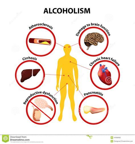 alchoholism and liver cirrhosis picture 3