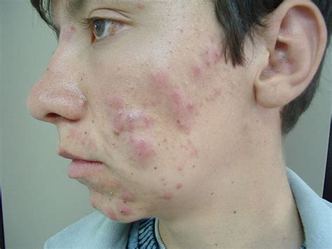 acne vulgaris picture 7