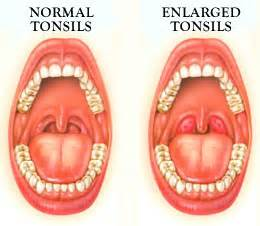 do swollen tonsils cause sleep apnea picture 18