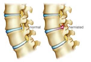 herniated disc pain relief picture 1