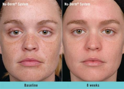 laser resurfacing pictures acne scars picture 15