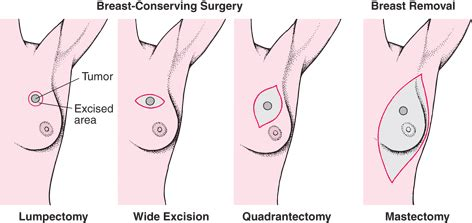can you have liver surgery if breast cancer picture 4