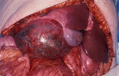 cysts in liver picture 1