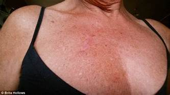 pictures of skin cancer on chest picture 2