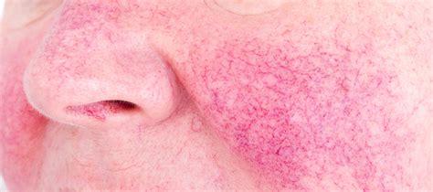 what is cerbvas disease le facia picture 11