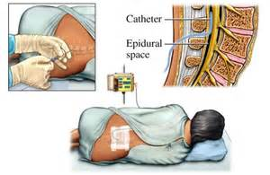 epidural pain relief picture 2