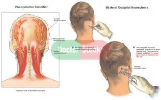 occipital neurectomy surgery picture 1