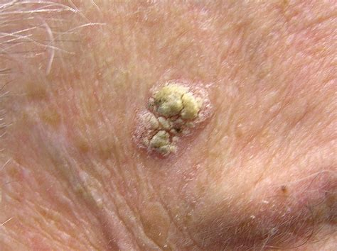 pictures of basil skin cancer picture 3