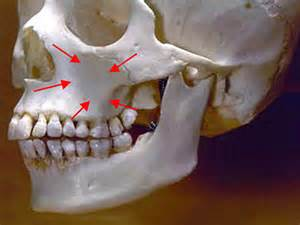 upper teeth ache maxillary sinus picture 14