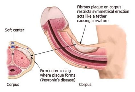 flaccid penis causes and cures picture 2
