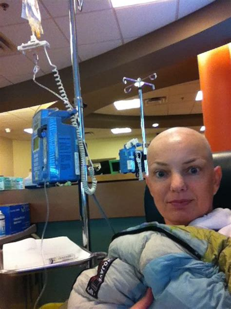 chemotherapy and sore h picture 11