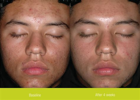 pantothenic acid acne works picture 7