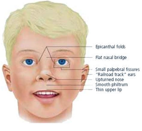children's thyroid symptons picture 3