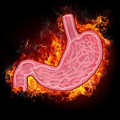 intestinal burning pain picture 6