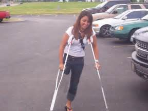 women leg amputee high level on crutches picture 2