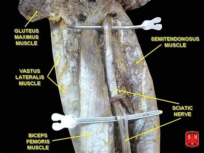 female desperation extreme bladder bulge picture 9