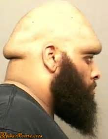 mushroom head big s picture 6