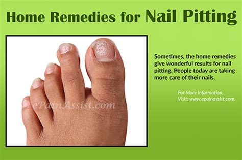 fungus in nail picture 6