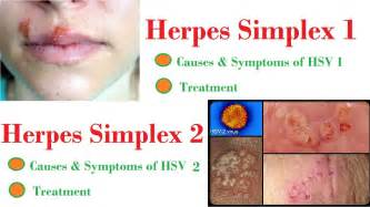 exposure to herpes simplex 2 picture 2
