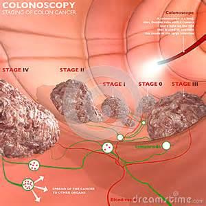 colon examines picture 15
