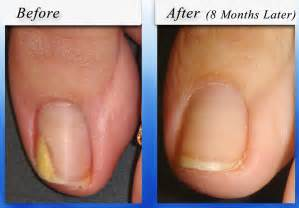 can touching toenails with fungus cause your fingernails picture 3