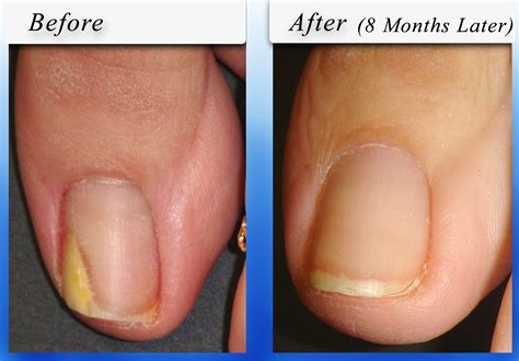 toe nail laser treatment in new mexico picture 12