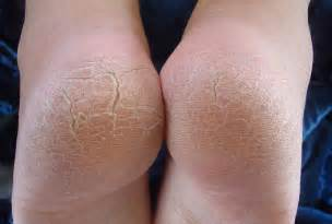heel skin is caused by picture 3