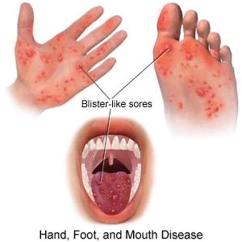 herbss for mouth and foot disease picture 7