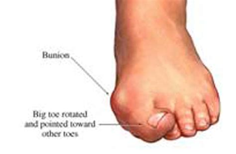 joint pain big toe picture 11