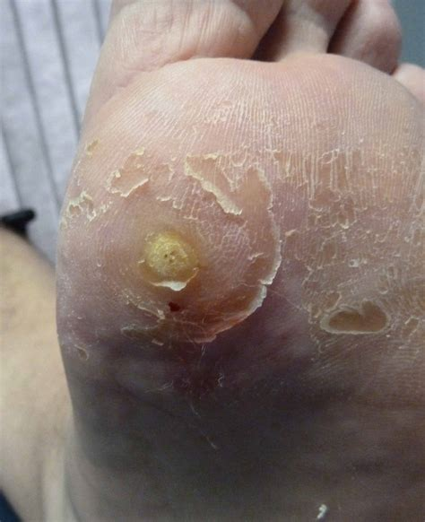 wart medications picture 1