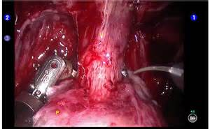 apical suspension of bladder picture 3